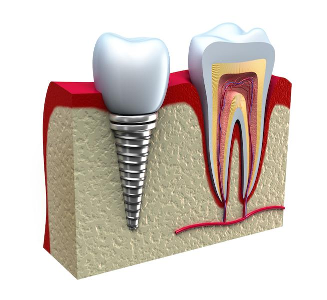 Dental Implant Diagram | Elgin IL Dentist