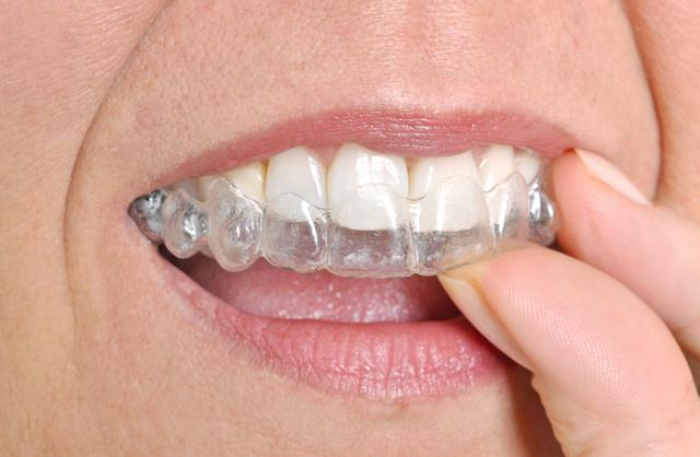 Woman putting Invisalign in | Dentist Elgin IL